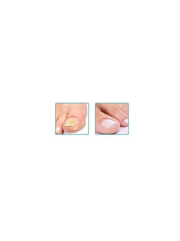 Gehwol Nail repair Gel Transparant